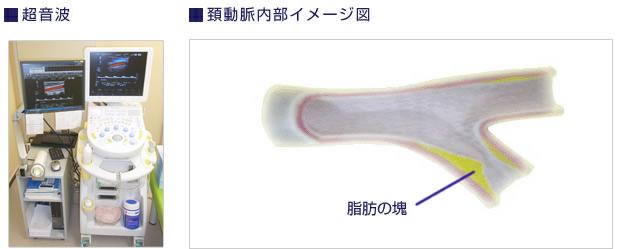 頚動脈内部イメージ図